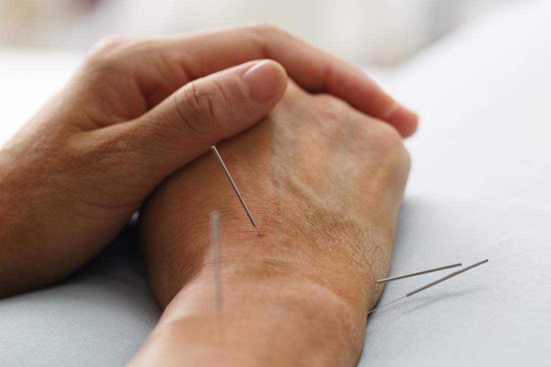 acupuncture-on-wrist